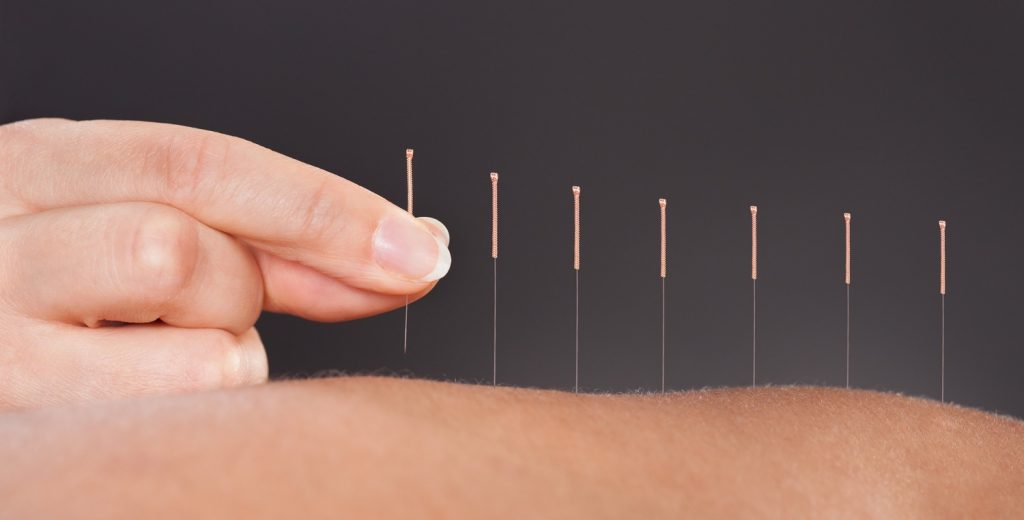 All About Acupuncture